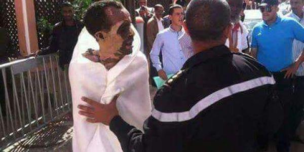 عاجل : وفاة بوعزيزي العيون الصالجي متأثراً بحروقه أمام مقر ولاية العيون