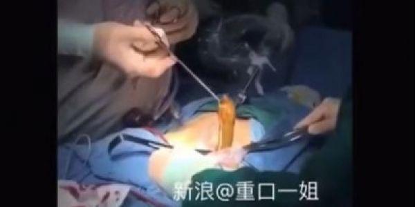 فيديو صادم، استخراج حنش من كرش مريض