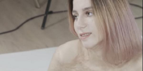 روسية رجعات عارضة أزياء مشهورة واخا جسمها كامل محروق