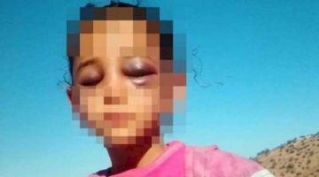 أخصائي فجراحة الراس: نتائج تقرير الأشعة ماكافياش لتشخيص حالة الطفلة مريم ولا بد من فحص الوجه والفكين