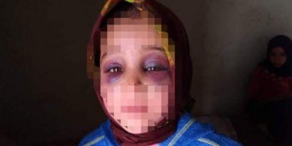 طفلة تارودانت تكرفصو عليها جوج مرات اللولة بالضرب والتانية بداك الحجاب لي دايرة وهي طفلة في حالة مكانش للوقاية من البرد فقط