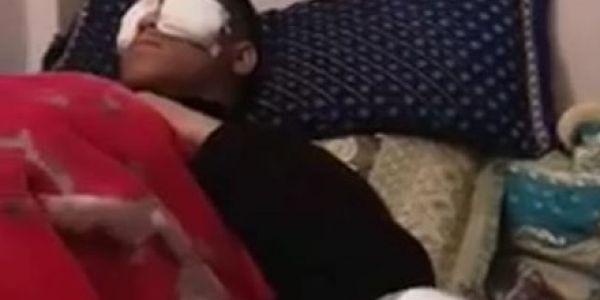 التعليم عن بعد.. تليفون طرطق فوجه تلميذ وتسبب ليه ف إصابات خايبة على مستوى العينين