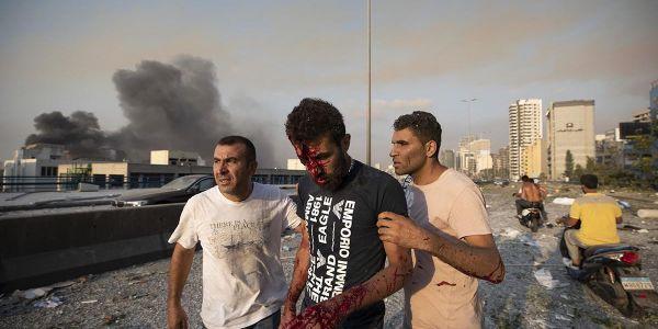 انفجار بيروت.. ترامب لمح بلي التفرگيع وقع  بقنبلة – فيديو