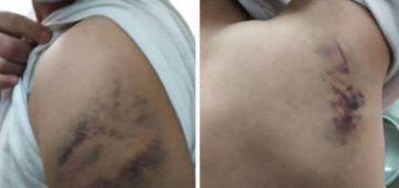 """جزر الكناري.. حراكَ مغربي دعا البوليس بسبب """"الاعتداء والتعذيب"""""""