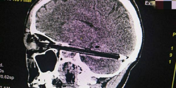 الأطباء عتقو راجل من الموت بعدما تخشى ليه قلم رصاص في الجمجمة ديالو