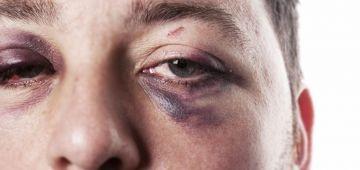 تقرير لمندوبية التخطيط: 70 ف المية من الرجال المغاربة تعرضو للعنف – أرقام