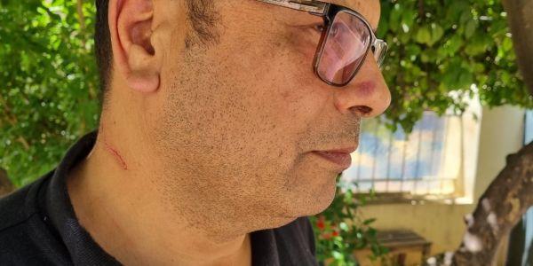 فاس.. تلميذ سقط فـ الباك شرمل رئيس المركز الإقليمي للإمتحانات والبوليس دخلو على الخط – تصاور