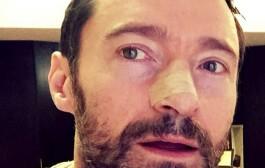 """نجم أفلام """"إكس مان"""" هيو جاكمان يكتشف إصابته بسرطان الجلد للمرة الخامسة بالصدفة"""