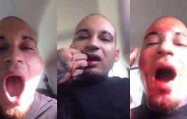 بالفيديو. مغني راب ضرب فمو بالقرطاس والسبب غبي