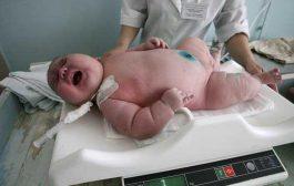 بالفيديو. أسترالية ولدات كينكو كيوزن 18 كيلو