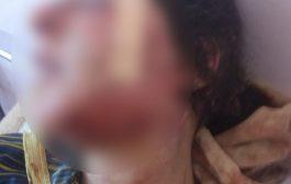فضيحة مابحالها فضيحة.. ثلاثينية حامل تتعرض للاغتصاب بعد تعريضها للتعذيب في صفرو +صور