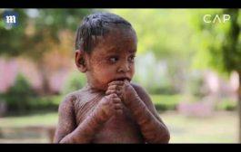 بالفيديو. طفلة هندية عندها حراشف بحال السحالي