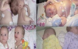 بالفيديو. توأمتين أصيبتا بسرطان نادر وتعالجو بشكل عجيب